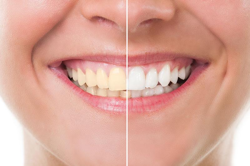 Teeth Whitening in Encinitas